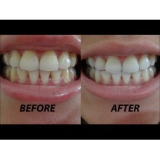Полоски отбеливающие Crest 3D White Glamorous White Whitestrips Dental Teeth Whitening Strips Kit
